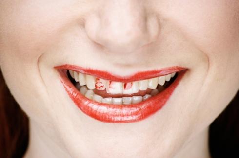 woman-lipstick-teeth